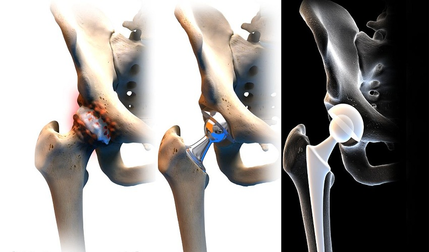 Things to Do Before Hip Replacement
